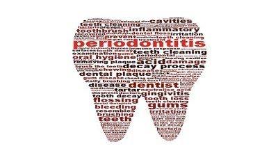 Parodontitis en algemene gezondheid
