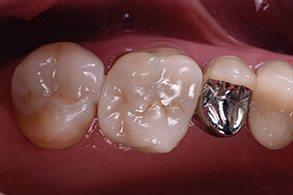 Casus Celtra Dentsply, evaluatie
