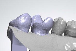 Casus Celtra Dentsply TTL 3