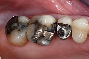 Casus Celtra Dentsply fig 1