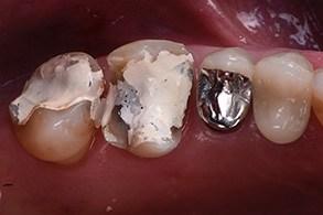 Casus Celtra Dentsply fig 11