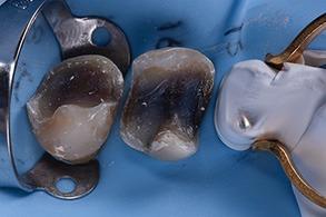 Casus Celtra Dentsply fig 12