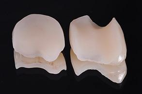 Casus Celtra Dentsply fig 15