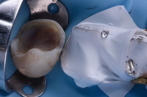 Casus Celtra Dentsply fig 16