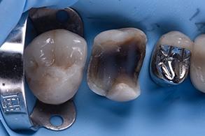 Casus Celtra Dentsply fig 18