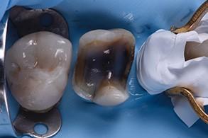 Casus Celtra Dentsply fig 19