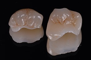 Casus Celtra Dentsply fig 9