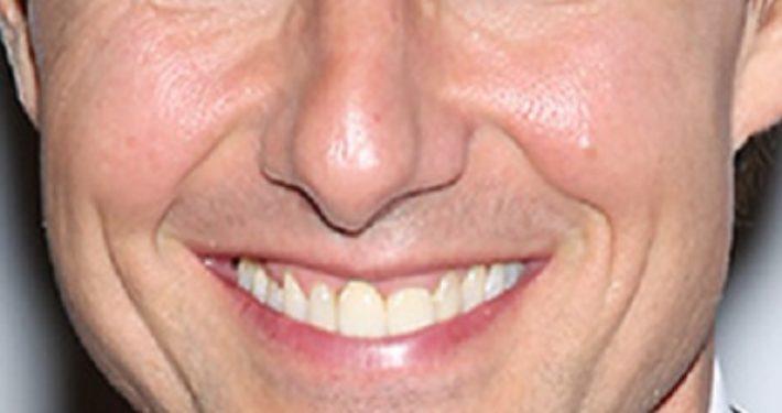 Orthodontische esthetiek