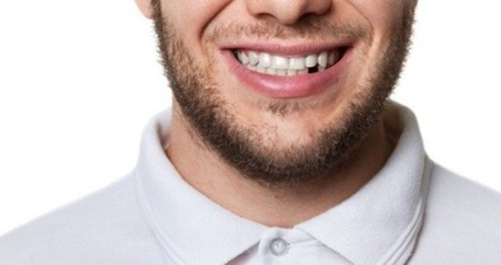 Behandel een uitgeslagen tand als hartattack
