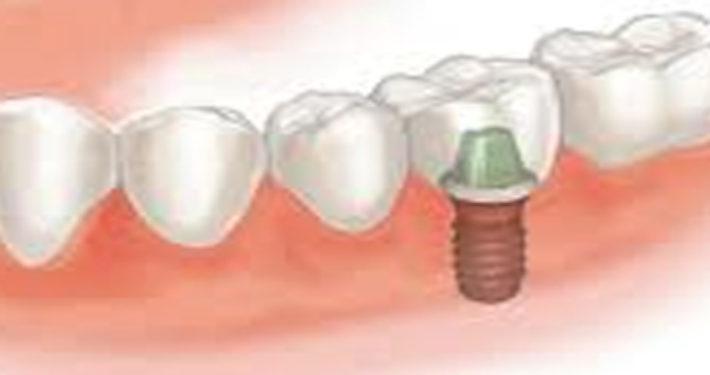 Tandheelkundig implantaat
