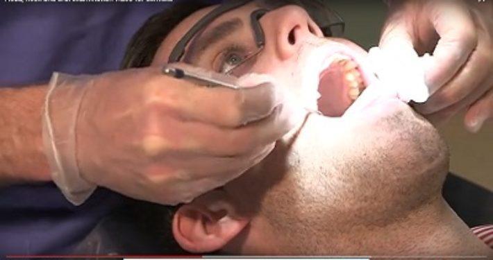 Gratis mondkanker onderzoek tijdens Mouth Cancer Awareness Day in Ierland