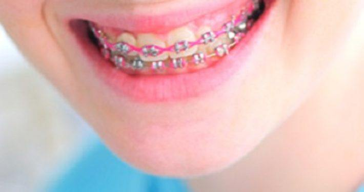 orthodontische