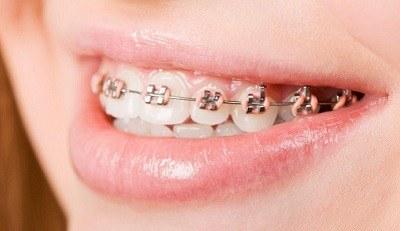Tandarts voor orthodontie: duidelijkheid in titelaanduiding