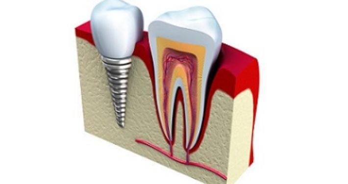 Nieuw tandheelkundig implantaat vermindert kans op infecties