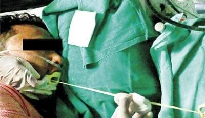 Lintworm verwijderen