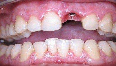 Front implantaat