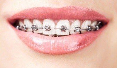 niet-zelf-orthodontie
