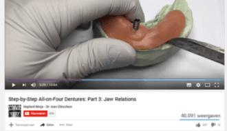3D-printing in de tandheelkunde