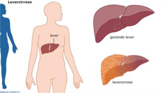 levercirrose
