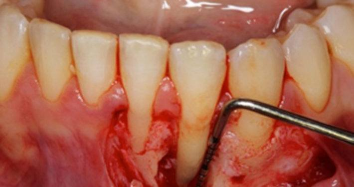 Grote studie naar erfelijkheid van parodontitis