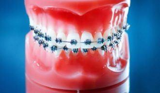 De rol van de mondhygiënist bij orthodontie