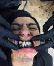 Zwart tandvlees: nieuwe trend onder tattoofanaten?