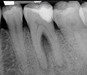 Casus endodontologie