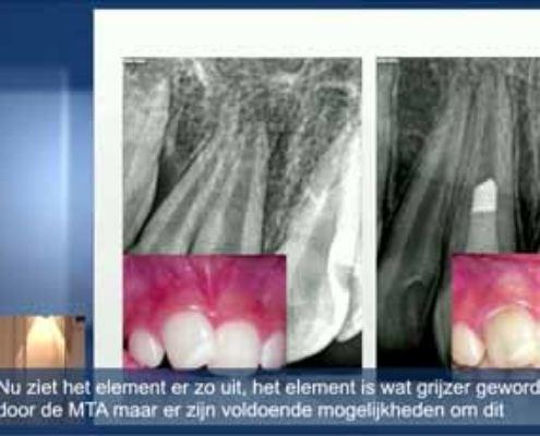 Het moderne endodontische behandelingsconcept: Introductie (Nederlands ondertiteld)