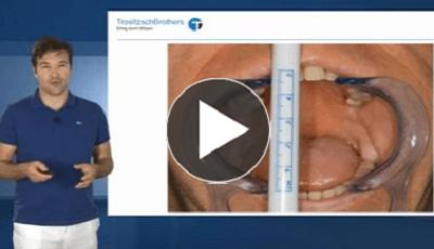 Ontstekingen in de mondzorg Deel 2 Diagnose en therapie (Engelstalig)