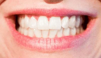 ANT: minister moet cosmetische tandheelkunde volledig vrijgeven