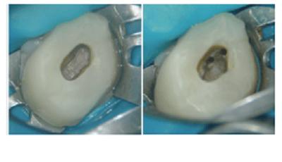 Behandeling van perforaties: welke factoren spelen mee?