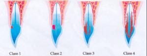Classificatie ICR volgens Heithersay, klasse 1 tm 4
