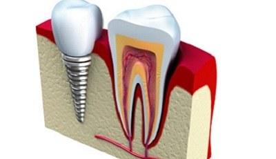 Direct implanteren: wanneer wel en niet?