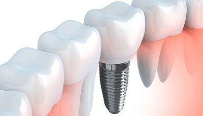 Implantologie: een samenspel tussen prothetiek en chirurgie