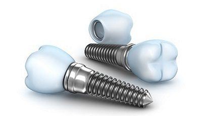 Microdraden bij implantaat bevorderen osseointegratie
