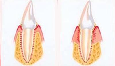 Mensen met astma hebben grotere kans op parodontitis