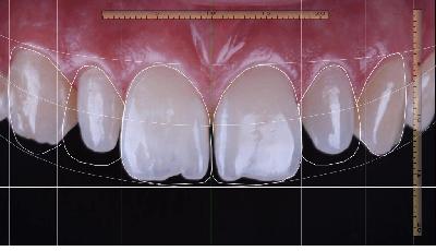 Wereldwijde markt restauratieve tandheelkunde $25,9 miljard waard in 2025