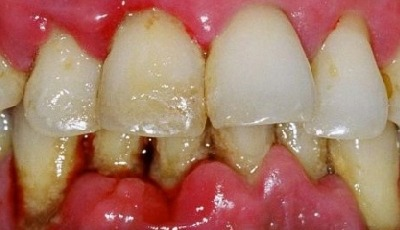 Parodontitis verhoogt risico op maagkanker