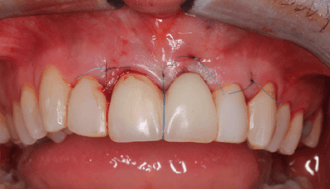 Implantologie Moderne prothetisch design om complicaties te voorkomen