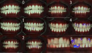 Inspektor introduceert QLF-diagnostiek op Dental Expo (Dental Expo - D.135)