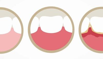 Taak voor mondhygiënist om onderliggende ziektes in beeld te brengen