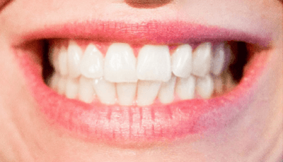 FDI brengt whitepapers uit voor meer aandacht parodontale aandoeningen