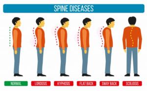Vermijden van musculoskeletale pijn door slecht postuur