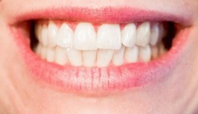 Opnieuw bewezen verband tussen mondgezondheid en algehele gezondheid