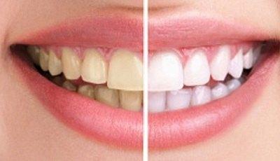 Een derde van alle Britten zou tanden bleken voor welzijn