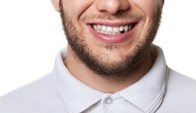 Verliezen van tanden op middelbare leeftijd teken van verhoogd risico op hartziekten