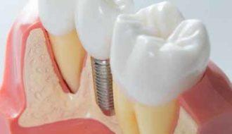 Restauratief-endodontische vlak: wat zijn de beste manieren?