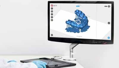 3D printen in de tandheelkunde. Waar hebben we het eigenlijk over?