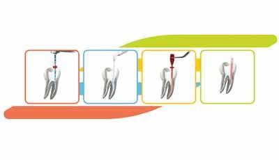 Endo-System van VDW: complete wortelkanaalbehandeling met één systeem