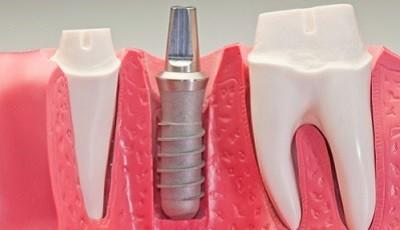 Onderhoud aan implantaten